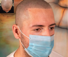 What These 3 Guys Have To Say About Scalp Micropigmentation